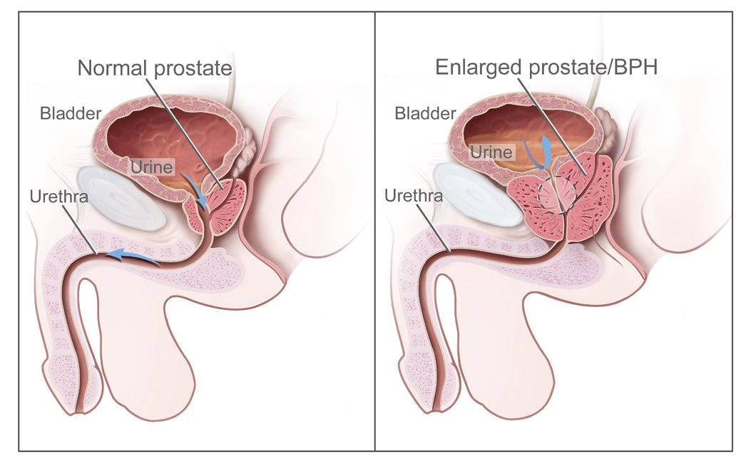Harvard Health Discover Men 50+ Are Missing The Signs of an Enlarged Prostate Gland